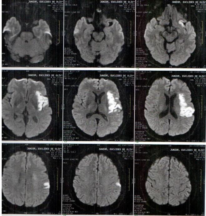 cerebro.jpeg